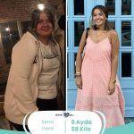 obezite cerrahisi sonrası değişim
