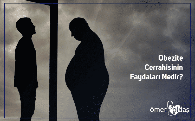 What Are The Benefits Of Obesity Surgery?